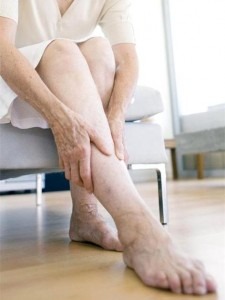 Circulation problems in legs