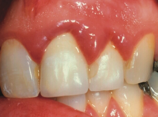 eliminate gingivitis