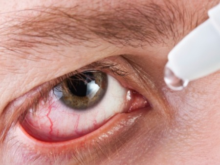 avoid eye redness