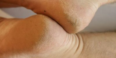 calluses appear on feet