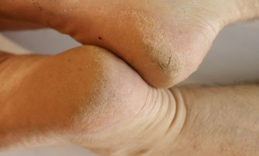 calluses appear on feet