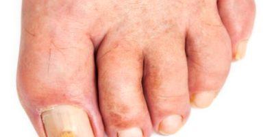 treat foot fungus