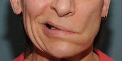 experiencing facial paralysis
