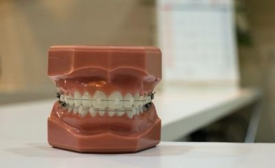 Care of Your Gums